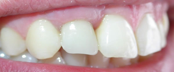 Dental Implants Colombo