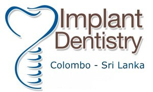 Dental Implant Surgery Colombo, Sri Lanka